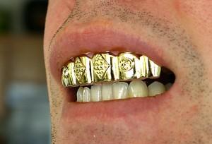 Originele tanden (c) uberculture